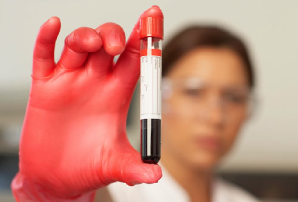 anti-aging blood test