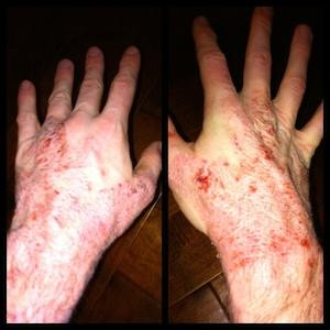 Red Skin Syndrome Hands