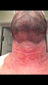 Red Skin Syndrome Neck